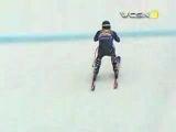 Bad Ski Accident
