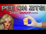 Dumb Yahoo Answers – Pee on Zits!
